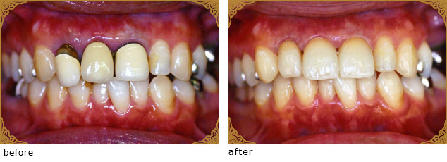 白く美しいセラミックの差し歯